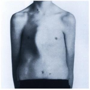 تصویر 1. فتوگرافی قبل از عمل بیمار PC