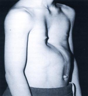 تصویر 1. یک بیمار مبتلا به پکتوس اکسکاواتوم
