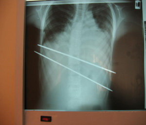 تصویر 4. رادیوگرافی رخ پس از عمل بیماری با پکتوس اکسکاواتوم که دو میلهی فلزی در آن مشاهده میشود