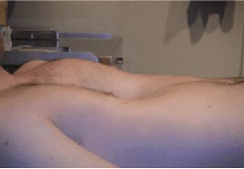 تصویر 10. عکس بیماری با پکتوس اکسکاواتوم