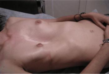 تصویر 11. عکس بیماری با پکتوس اکسکاواتوم
