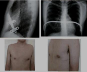 تصویر 12. اصلاح پکتوس اکسکاواتوم به روش Nuss