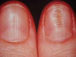 تصویر 4- دیستروفی ناخن ناشی از تروما